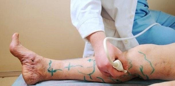 jak leczyć żylaki na nogach